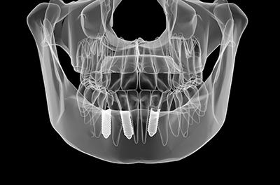 より自分の歯に近い咬み心地を